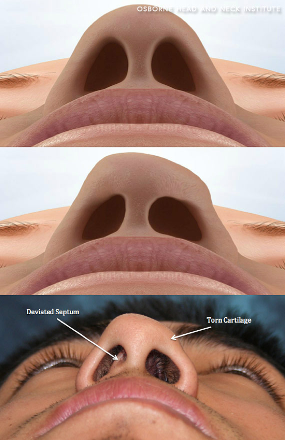 fractured nose treatment surgery