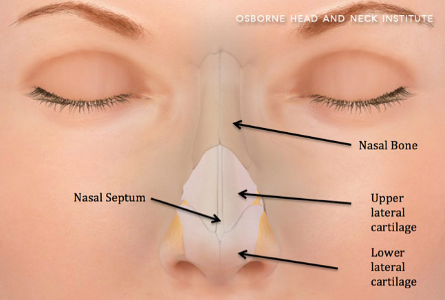 nasal fracture surgery los angeles
